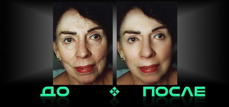 Фотошоп убрать морщины онлайн бесплатно в студии Photo after