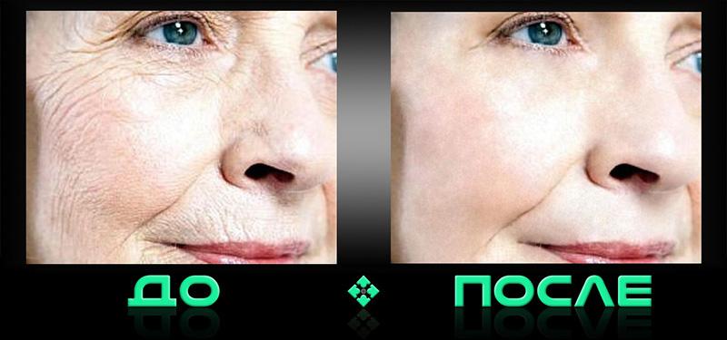 Фотошоп онлайн морщины в нашем редакторе изображений
