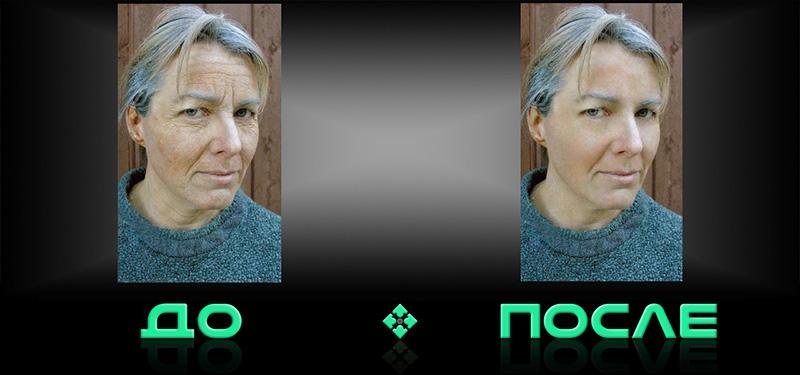 Фотошоп онлайн убрать морщины в нашем редакторе изображений