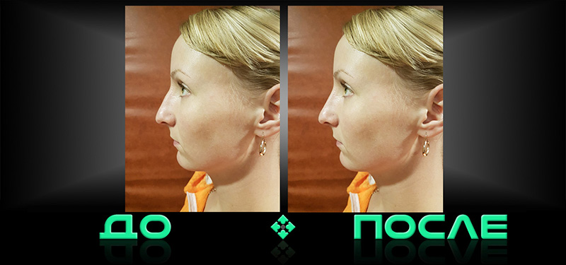 Изменить нос на фото в творческой студии