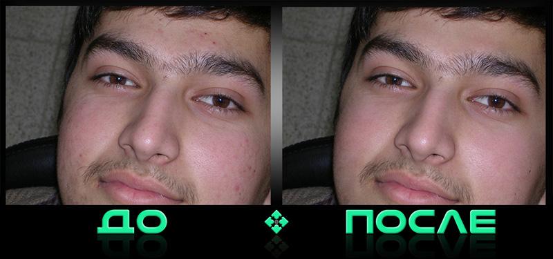 Фотошоп онлайн убрал прыщи бесплатно в нашем редакторе изображений