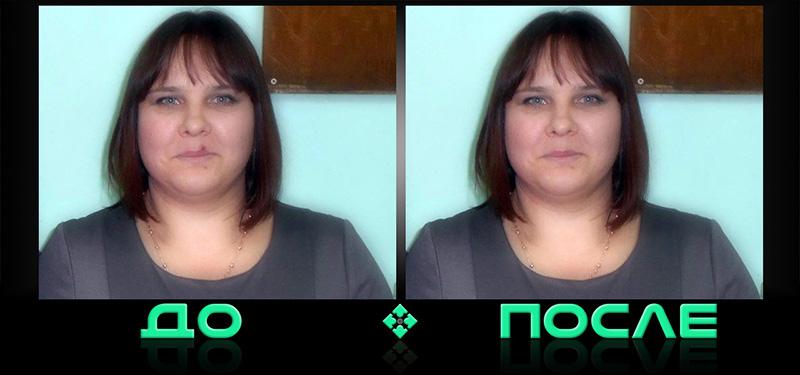 Удалить прыщи на фото в онлайн редакторе изображений