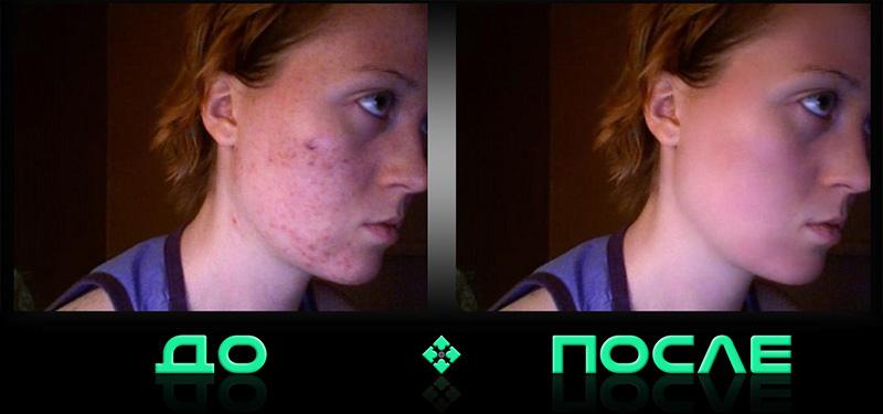 Фотошоп почистил лицо в онлайн редакторе Photo after