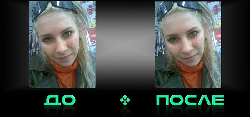 Фотошоп уберет прыщи в онлайн редакторе изображений