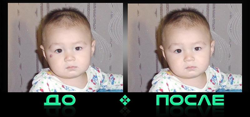 Удаление родинок на фото в онлайн редакторе изображений