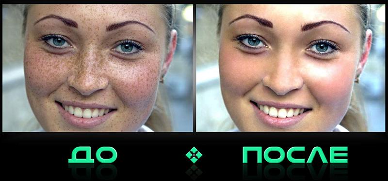 Фотошопнем онлайн дефекты кожи в нашем редакторе изображений