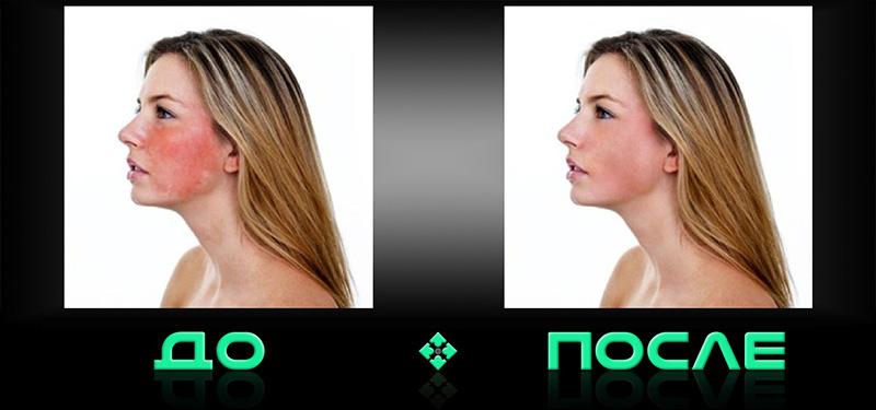 Онлайн фотошоп цвет лица в нашем редакторе изображений