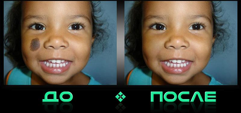 Устранение дефектов кожи в фотошопе онлайн редактора изображений