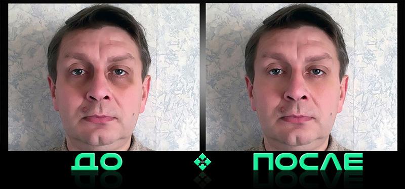 Фотошопим синяки под глазами в онлайн редакторе изображений