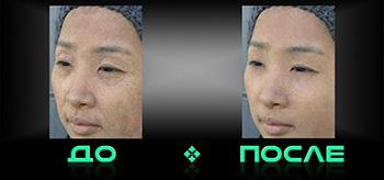 Фотошоп морщин в онлайн редакторе изображений