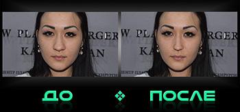 Уменьшить нос на фото в онлайн редакторе