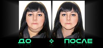 Фотошоп двойного подбородка в творческой студии Photo after