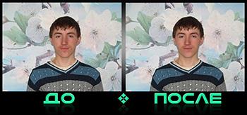 Фотошоп удаление прыщей в онлайн редакторе изображений