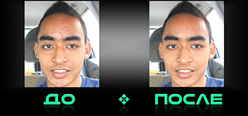 Фотошопнуть чистку лица в онлайн бесплатном редакторе изображений