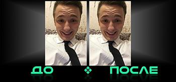 Фотошоп зубов онлайн в редакторе Photo after