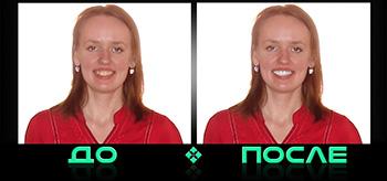 Фотошоп зубов онлайн бесплатно в нашем редакторе изображений
