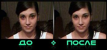 Фотошоп синяков под глазами в онлайн редакторе нашей студии